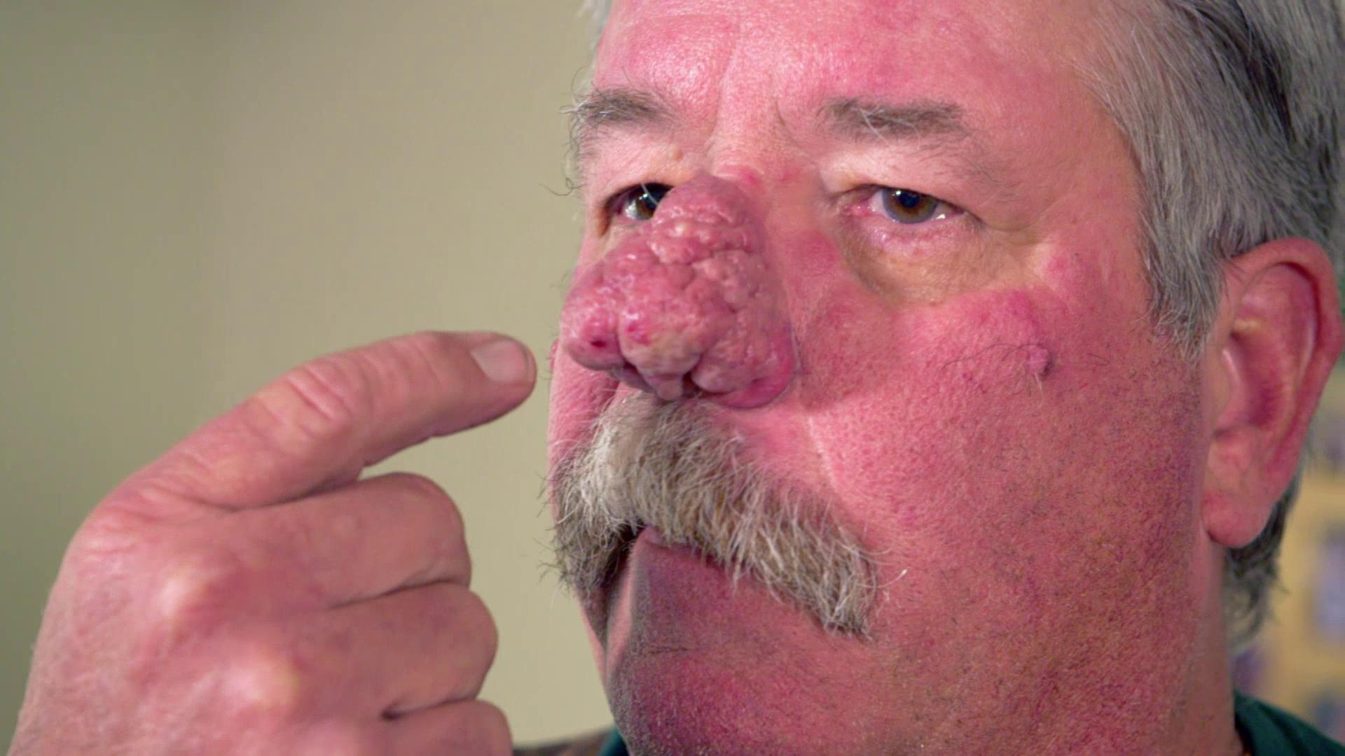 que es un lipoma en la nariz